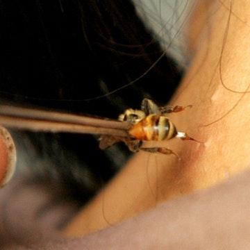 Một phụ nữ tử vong do dùng ong châm cứu