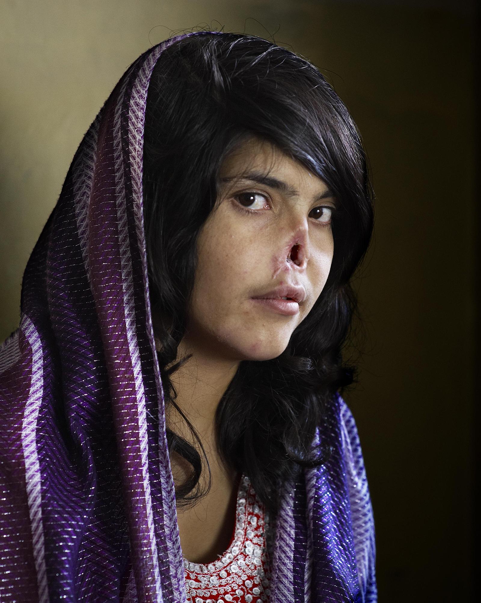 20 bức ảnh mô tả chân thật những mặt tối đau đớn của nhân loại