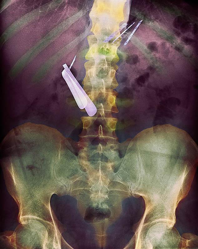 Những tấm hình X quang vừa hài hước vừa rùng rợn