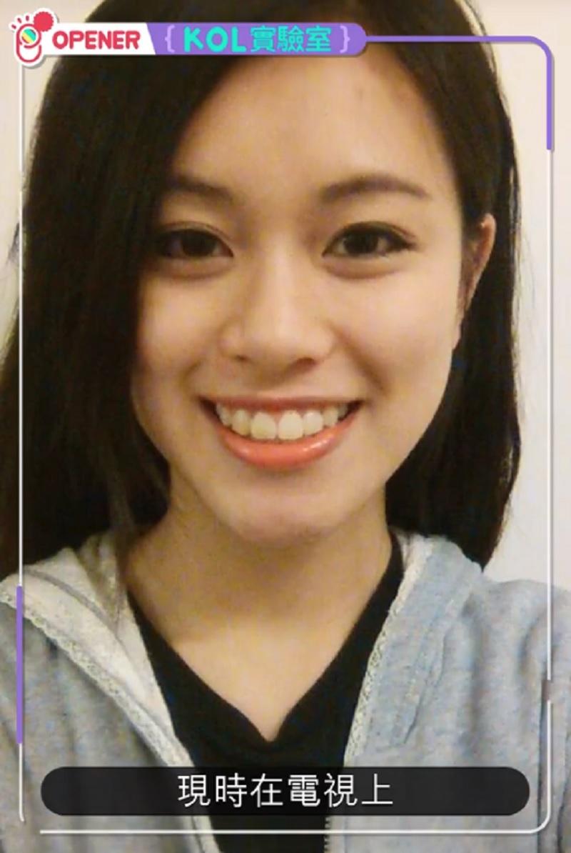 Youtuber nổi tiếng Hong Kong phẫu thuật thẩm mỹ 30 lần để chiều lòng bạn trai