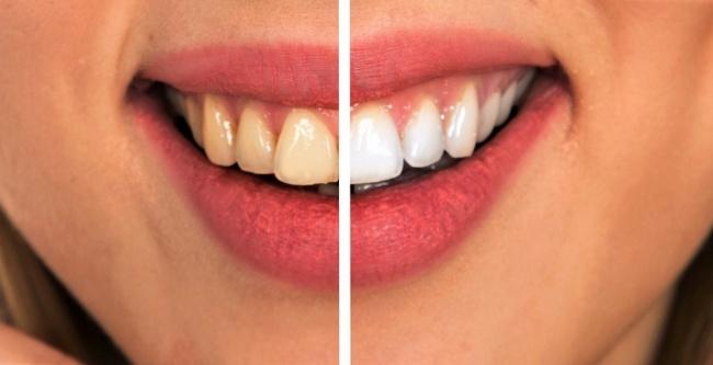 6 mẹo vặt giúp bạn có một hàm răng khỏe mạnh hơn