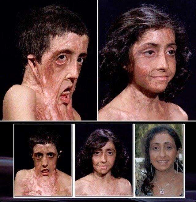 Ca phẫu thuật thần kỳ tái tạo gương mặt biến dạng do bỏng nặng của thiếu nữ
