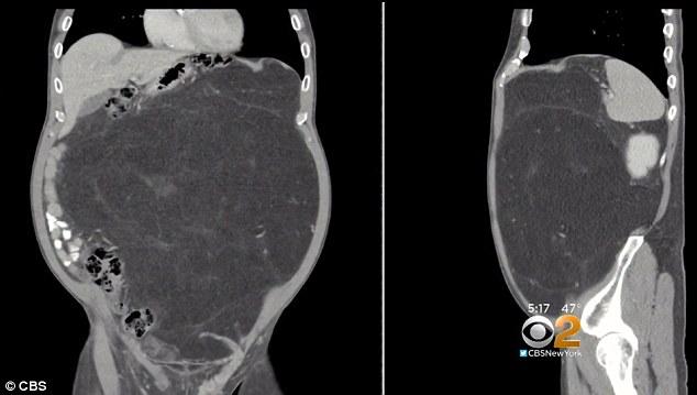 Tưởng béo do bụng bia, người đàn ông tá hoả phát hiện khối u nặng 13kg trong bụng