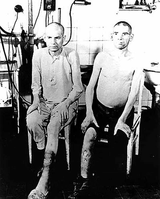 Những thí nghiệm man rợ mà Đức Quốc xã từng thực hiện trên con người (P2)