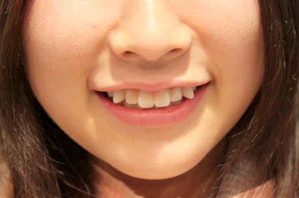 8 phương pháp làm đẹp quái dị ở Nhật Bản mà ai cũng thấy khó hiểu