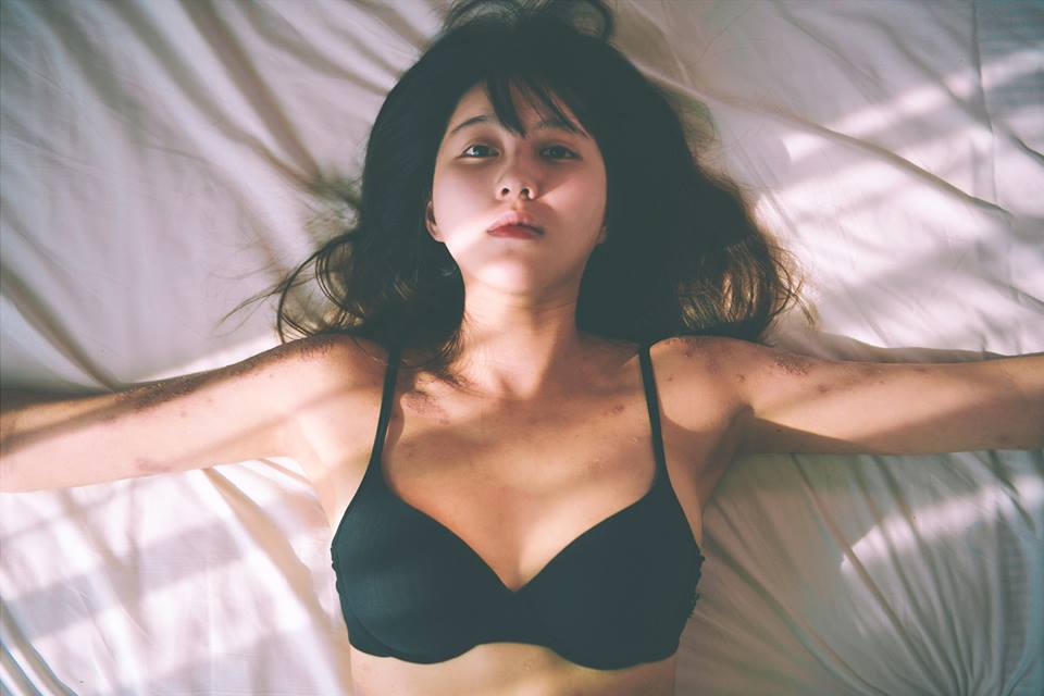 Bệnh viêm da quái ác không thể ngăn nữ người mẫu nội y khoe cơ thể xinh đẹp