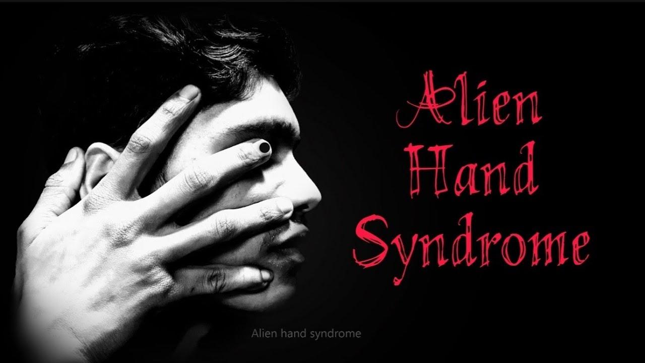 'Bàn tay ngoài hành tinh': Hội chứng thần kinh đáng sợ khiến bàn tay tự... bóp cổ chính chủ nhân của mình