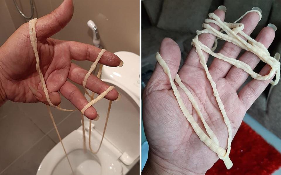 Người đàn ông Thái Lan hoảng sợ khi kéo được sán dây dài hơn 9 mét trong lúc đi vệ sinh
