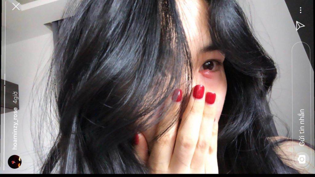 Bạn đã biết cách tẩy trang mắt đúng cách để không bị viêm mắt như Hoà Minzy?