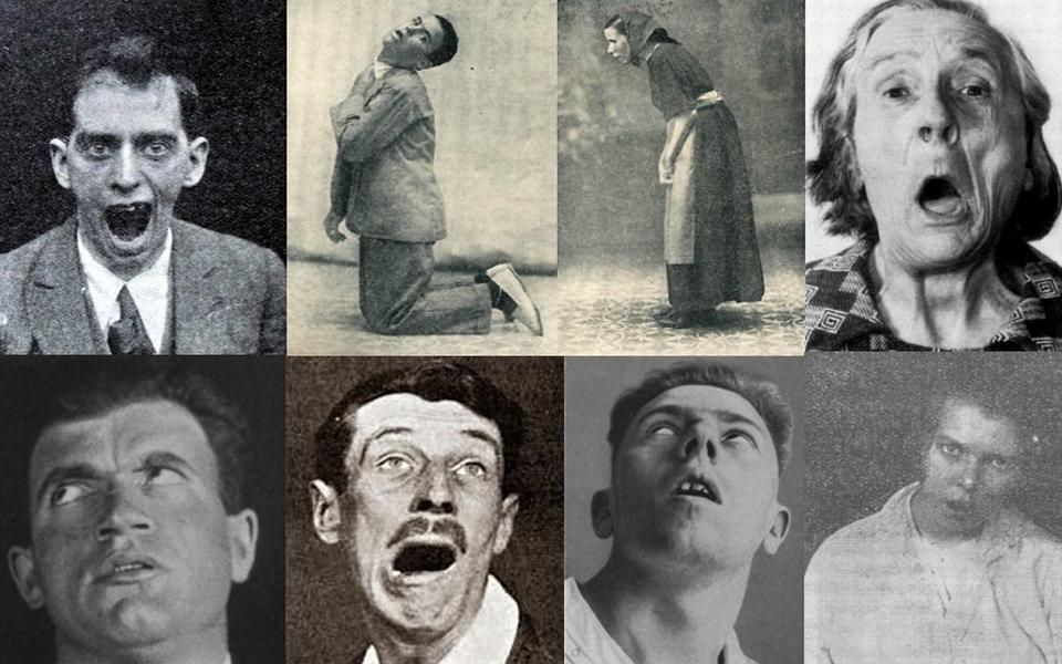 Bệnh buồn ngủ - Nạn dịch quái lạ biến con người trở thành 'xác sống'