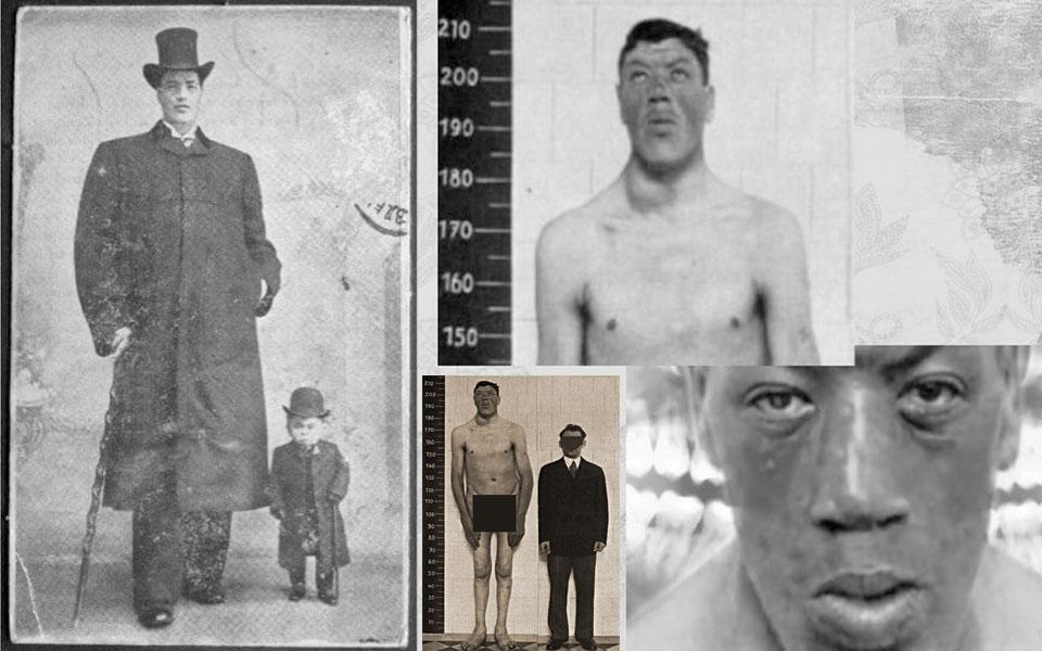 Chuyện lạ hiếm thấy về Adam Rainer: Người đàn ông vừa lùn lại vừa cao duy nhất trong lịch sử nhân loại