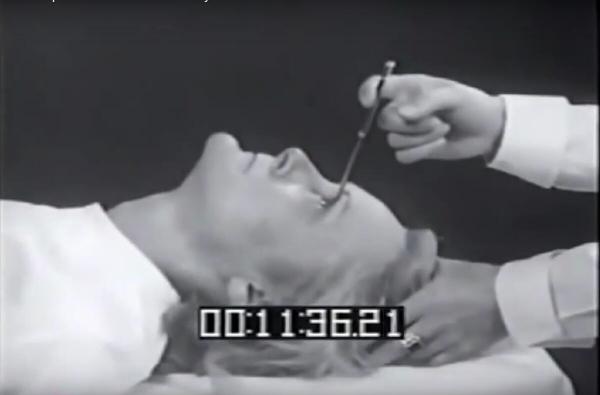Những cách chữa bệnh kinh dị nhất của người xưa