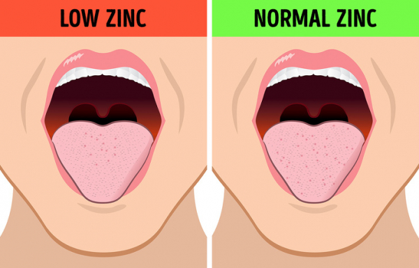 Cảm thấy mùi vị lạ trong miệng có thể là dấu hiệu về tình trạng sức khoẻ không tốt
