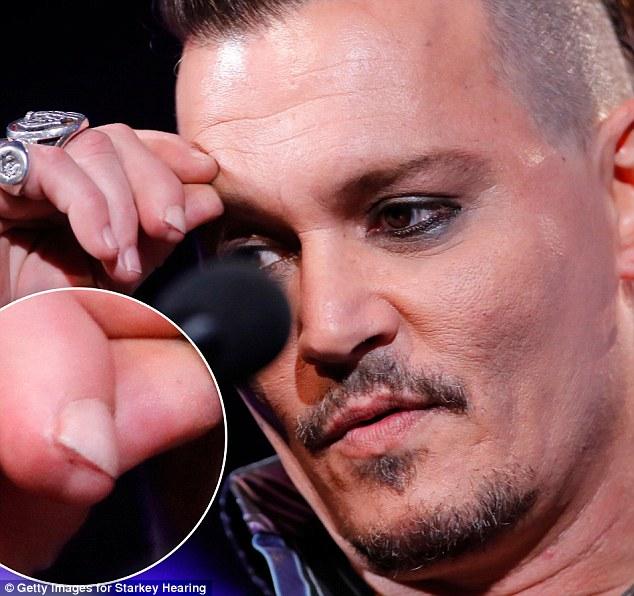 Johnny Depp đưa ra bằng chứng Amber Heard đã chém đứt một phần ngón tay anh khi cãi nhau