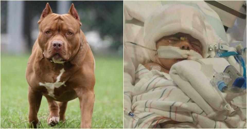 Bé gái hai tháng tuổi chịu thương tổn nặng nề sau khi bị chó Pit bull tấn công