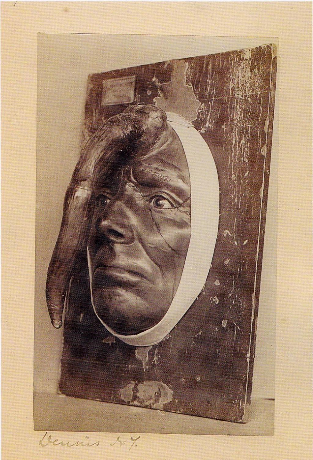 Những bức ảnh ngành y gây chấn động lịch sử ở bảo tàng y học Mütter