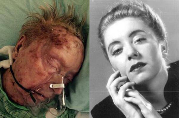 Một cụ bà bị bỏ rơi cho tới chết trong viện dưỡng lão vì mắc bệnh ghẻ nặng