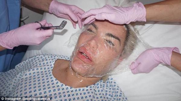 Cận cảnh 'búp bê Ken' tiêm tinh chất nhau thai trẻ hoá nhan sắc sau 200 lần 'dao kéo'