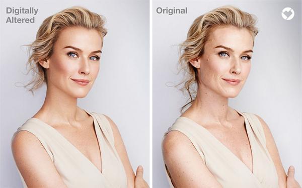 Đừng tự ti về bản thân nữa, những người mẫu của hãng thời trang lớn cũng có vết rạn da mà