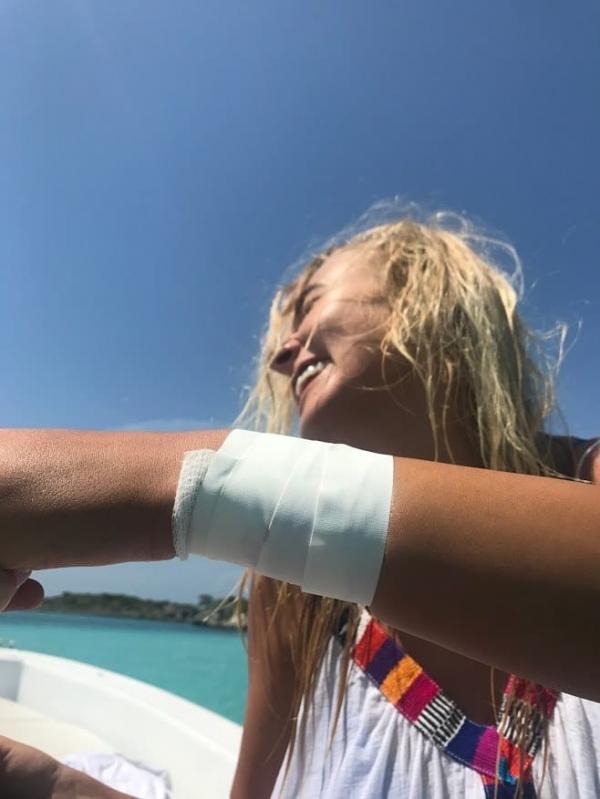 Muốn có ảnh 'độc lạ' trên biển, nữ người mẫu Instagram bị cá mập cắn