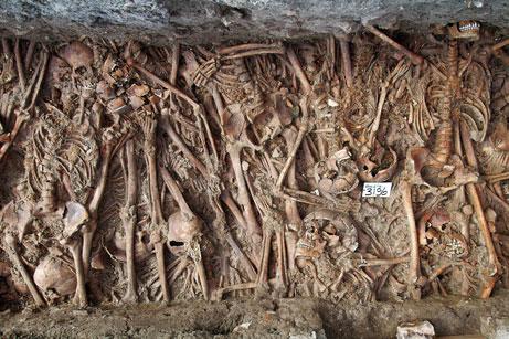 10 dịch bệnh kinh hoàng đã từng càn quét hàng triệu sinh mạng trong lịch sử loài người