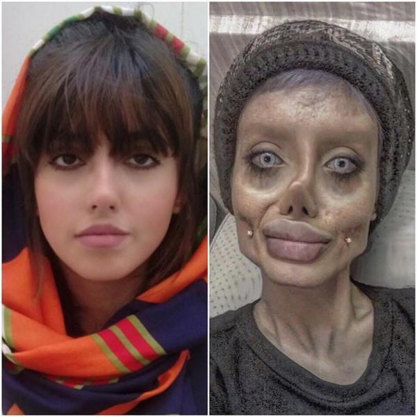 Lần đầu lộ diện nhan sắc thật của cô gái từng gây sốc với khuôn mặt PTTM giống Angelina Jolie
