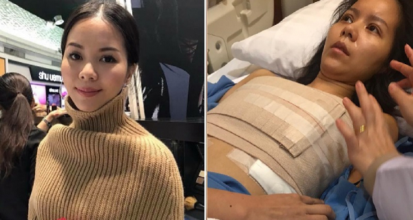 Ngôi sao nhạc Pop Thái Lan đệ đơn kiện bệnh viện Hàn vì suýt chết sau ca phẫu thuật nâng ngực