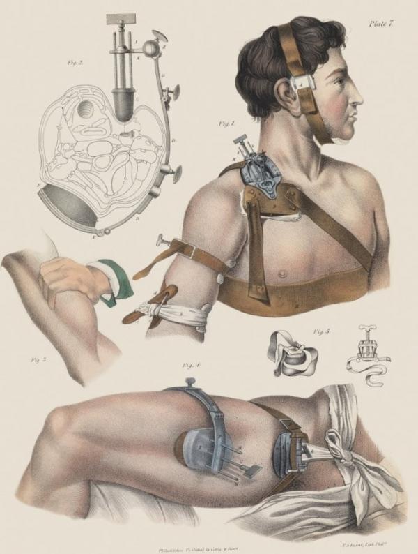 Bộ sưu tập tranh minh họa sống động về giai đoạn y học phẫu thuật thế kỷ XV - XIX