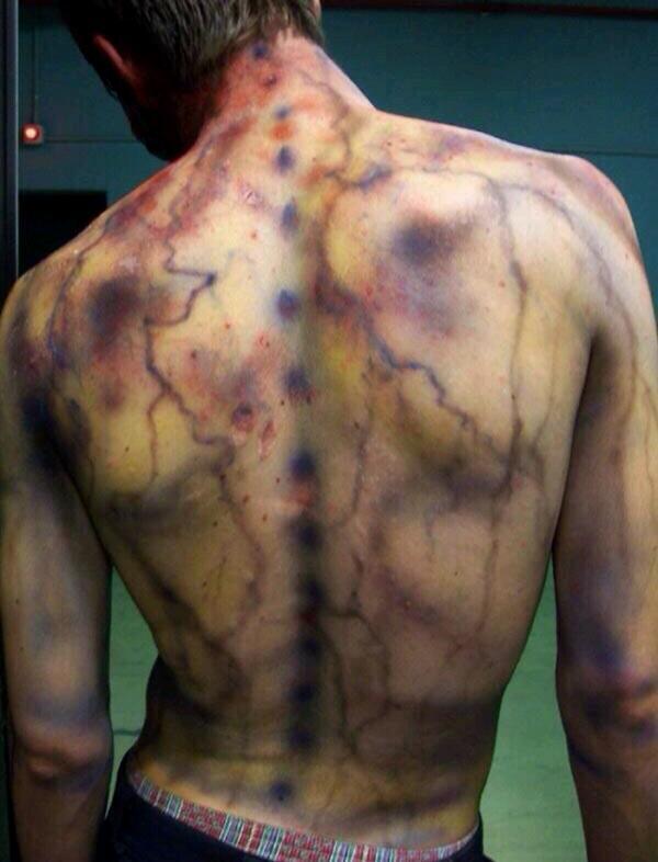 Hình ảnh không khác gì phim kinh dị của các nạn nhân bị sét đánh