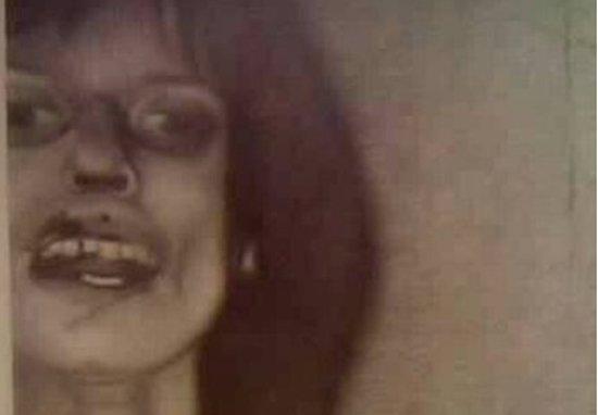 Anneliese Michel chết vì bị quỷ ám hay chứng tâm thần phân liệt?