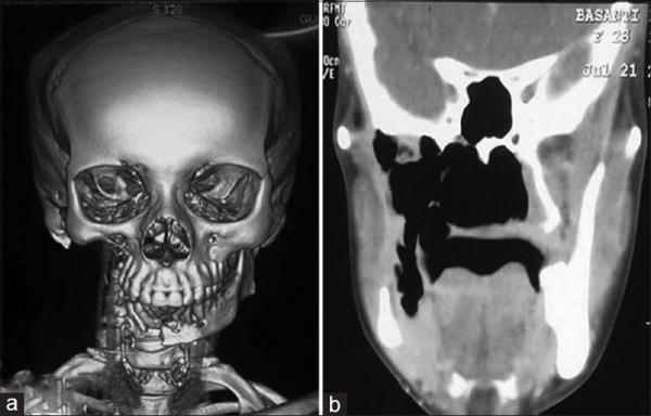 Bệnh tiêu xương - Chứng nan y khiến con người mất dần hệ thống xương trong cơ thể