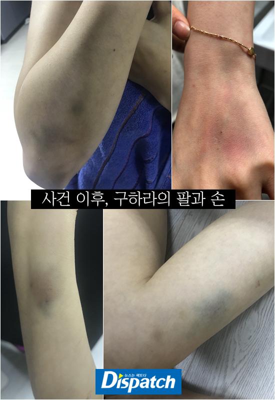 Lộ ảnh Goo Hara bầm tím khắp người, bị bạn trai hành hung đến mức 'xuất huyết tử cung'