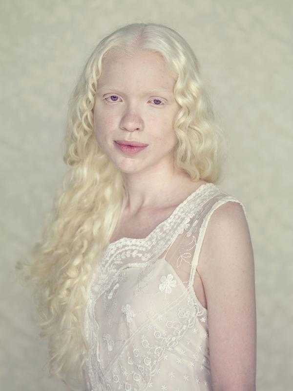 Người bạch tạng: Yểu mệnh, bị săn đuổi lấy xác, bị kì thị màu da nhưng chưa bao giờ đẹp đến thế