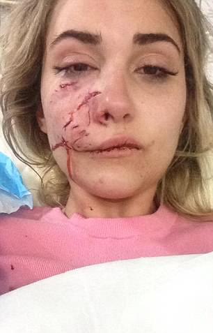 Khâm phục nghị lực của người mẫu trẻ trên hành trình phục hồi nhan sắc sau khi bị chó Pitbull tấn công