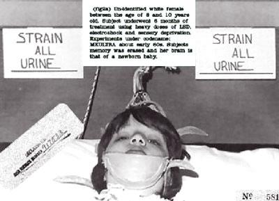 Những thí nghiệm tàn độc mà chính phủ Mỹ đã từng áp dụng trên cơ thể con người