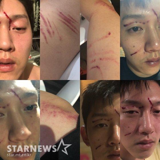 Tình cũ Goo Hara công khai gương mặt chằng chịt vết thương, khẳng định mình mới là nạn nhân bị quay clip sex