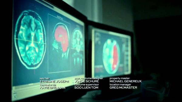 Những bí mật rợn người chưa có câu trả lời trong series 'Hannibal' nổi tiếng