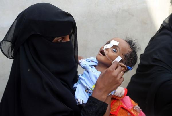 Rơi nước mắt trước những hình ảnh về nạn đói tồi tệ nhất trong vòng 100 năm qua ở Yemen