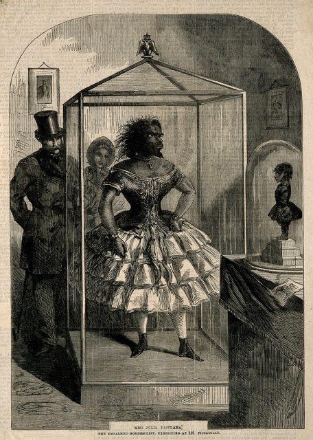 Người phụ nữ xấu xí nhất lịch sử từng có đến 20 lời cầu hôn nhưng chỉ mãi thủy chung với một người