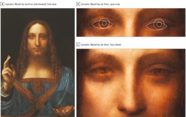 Hóa ra danh họa Leonardo da Vinci bị... lé do mắc chứng rối loạn thị lực