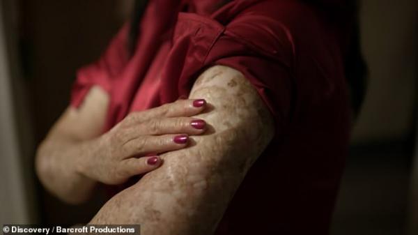 Người phụ nữ 'ma cà rồng' suốt đời sống trong bóng tối vì mắc bệnh dị ứng ánh nắng mặt trời