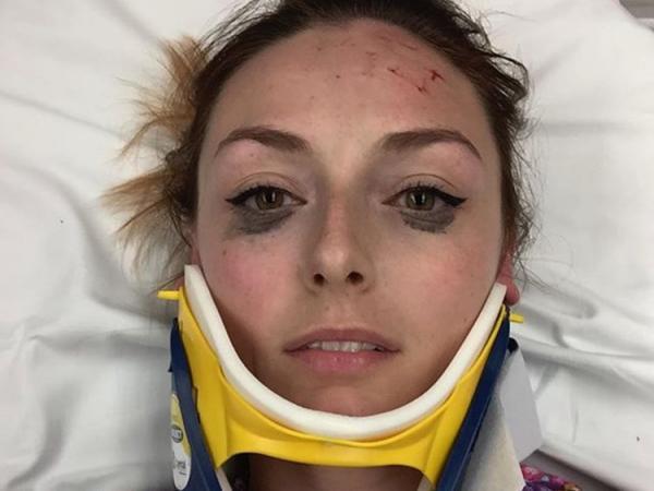 Hài hước chuyện anh khách chụp selfie trước và sau vụ tai nạn xe