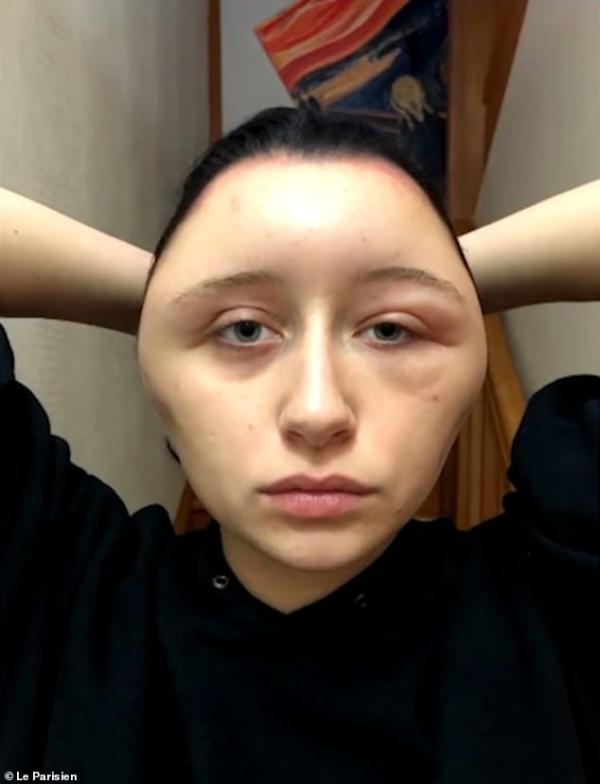 Tác dụng phụ đáng sợ của thuốc nhuộm tóc khiến đầu cô gái sưng to gấp đôi bình thường