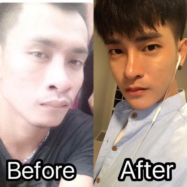Sau 30 cuộc phẫu thuật, chàng trai bán giày lột xác và nổi tiếng nhờ trở thành Minho của Thái Lan