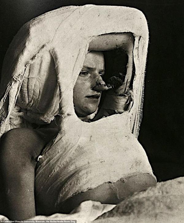 Loạt ảnh y khoa hiếm gặp từ thế kỷ 19 vẫn khiến người xem run rẩy đến tận bây giờ