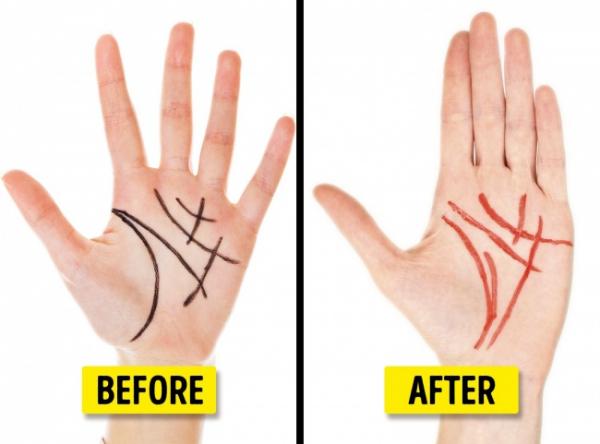 Chỉnh đường chỉ tay, nâng ngực một ngày: Những kiểu phẫu thuật thẩm mỹ 'hàng hiếm' không phải ai cũng biết