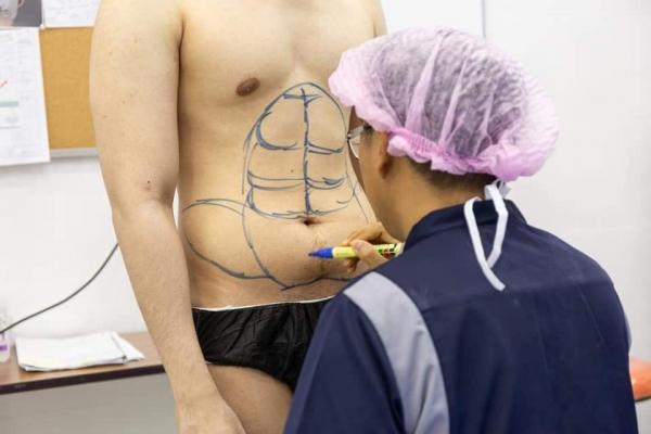 Khỏi cần tập gym vẫn có thể sở hữu body sáu múi chuẩn manly nhờ... dao kéo