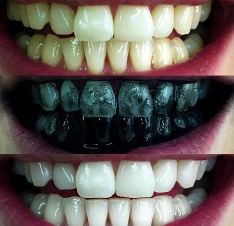 Kem đánh răng than tre chẳng những không làm trắng răng mà còn gây sâu răng cho người dùng