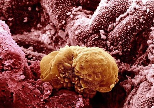 Các cơ quan trong cơ thể của chúng ta trông thế nào dưới kính hiển vi?