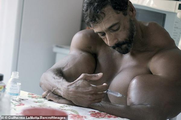 Ông chú Brazil liều mạng tiêm synthol để có cơ bắp 'khủng' như Hulk